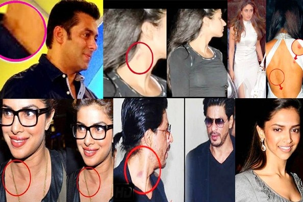 Bollywood Celebrities caught showing their Love Bites